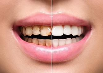 白く美しい歯を~ホワイトニング~